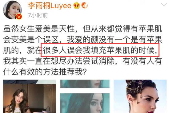 李雨桐再发文否认整容,称:很多人误会我填充苹果肌
