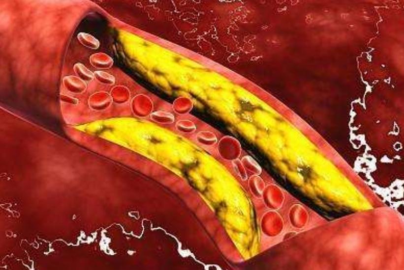 血管堵塞的人,晚上睡觉可能有这些症状,若你没中,真是太幸运了