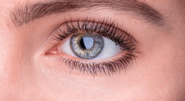 女性眼角周围经常长斑的原因 内调外养帮你恢复肌肤光彩