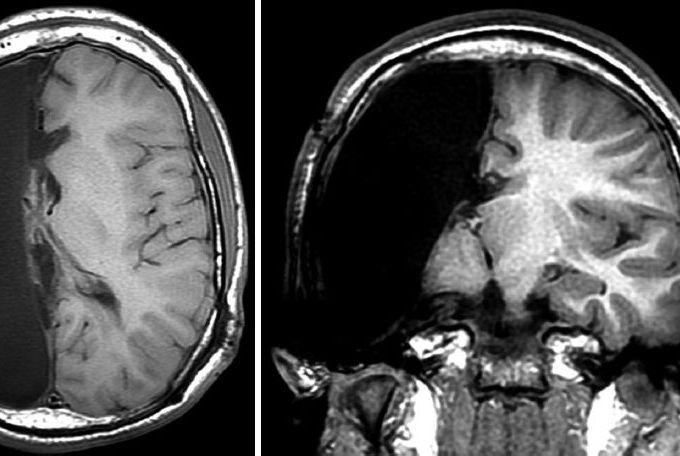 """对一些人来说,""""只有半个大脑""""反而活得更好"""