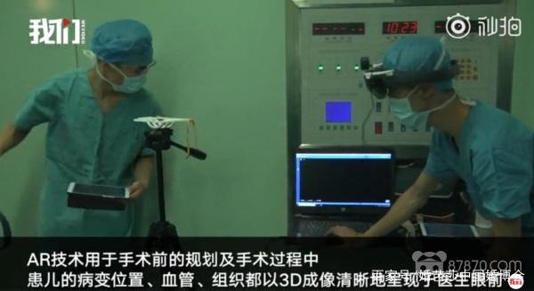 AR医疗|西安完成海内首例AR儿童脑血管畸形手术