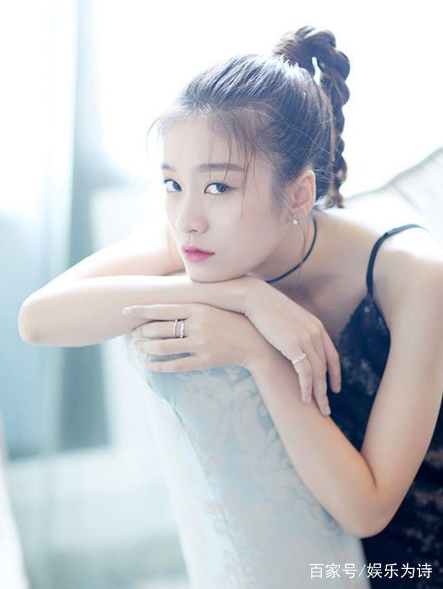 张雪迎:俏皮可爱,少女感十足,五官精致惹人爱,十分