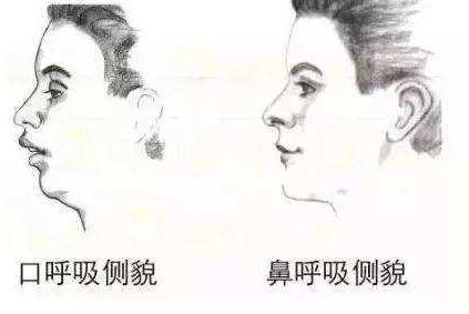 科学证实:长期用嘴呼吸的人,相貌会变丑!