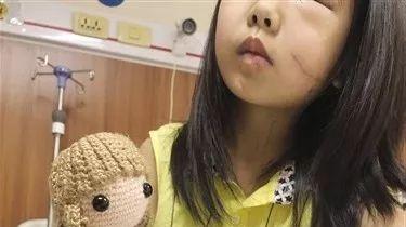 心碎……8岁小女孩不幸失去左眼,父亲打算这样做