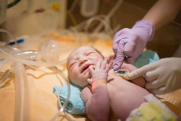 医生提醒家长:新生儿出生后的疾病筛查要重视