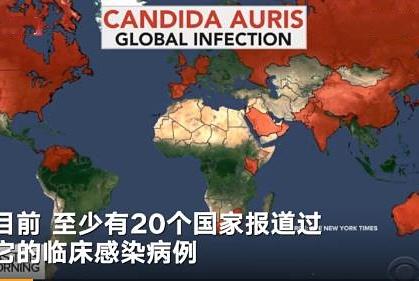 中国确诊18例超级真菌,感染耳念珠菌的死亡率在60%以上