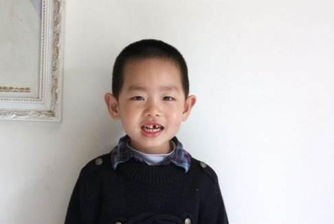 宝宝掉牙后要及时补锌,否则会损害健康?