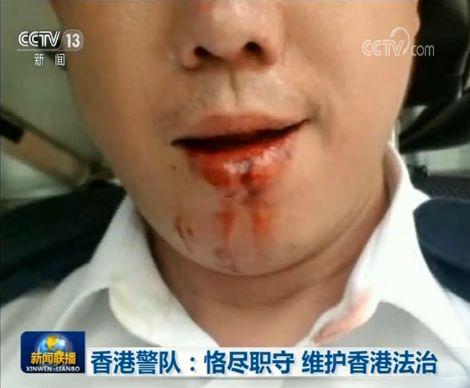香港英籍总警司自述女儿老师灌输要以警父为耻,《新闻联播》点名