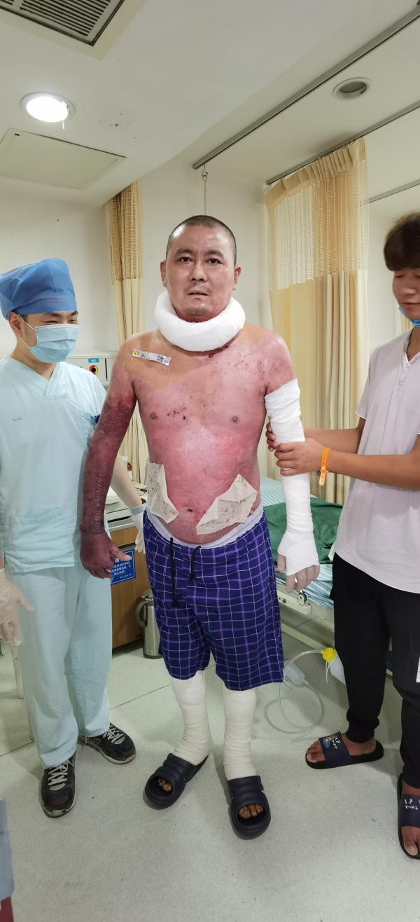 杭州电瓶车爆燃烧伤父女最新情况:父亲出院,女儿仍在抗感染