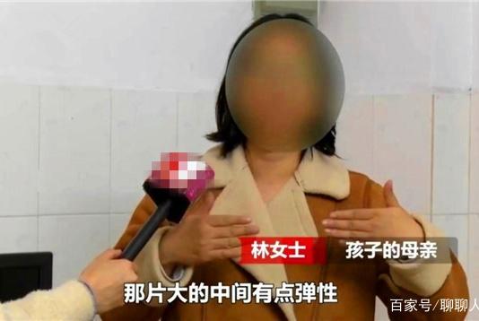 8月大女婴被护栏卡死,父母质疑产品缺陷,商家:父母抢救不及时
