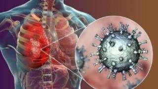 哥伦比亚确诊首例新冠肺炎病例