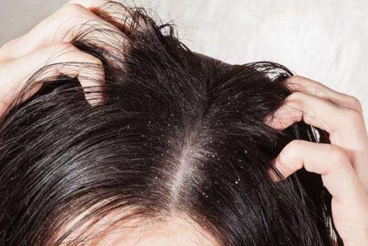 """春天一到,头发就开始""""起油""""?教你3个小妙招,让头发保持干爽"""