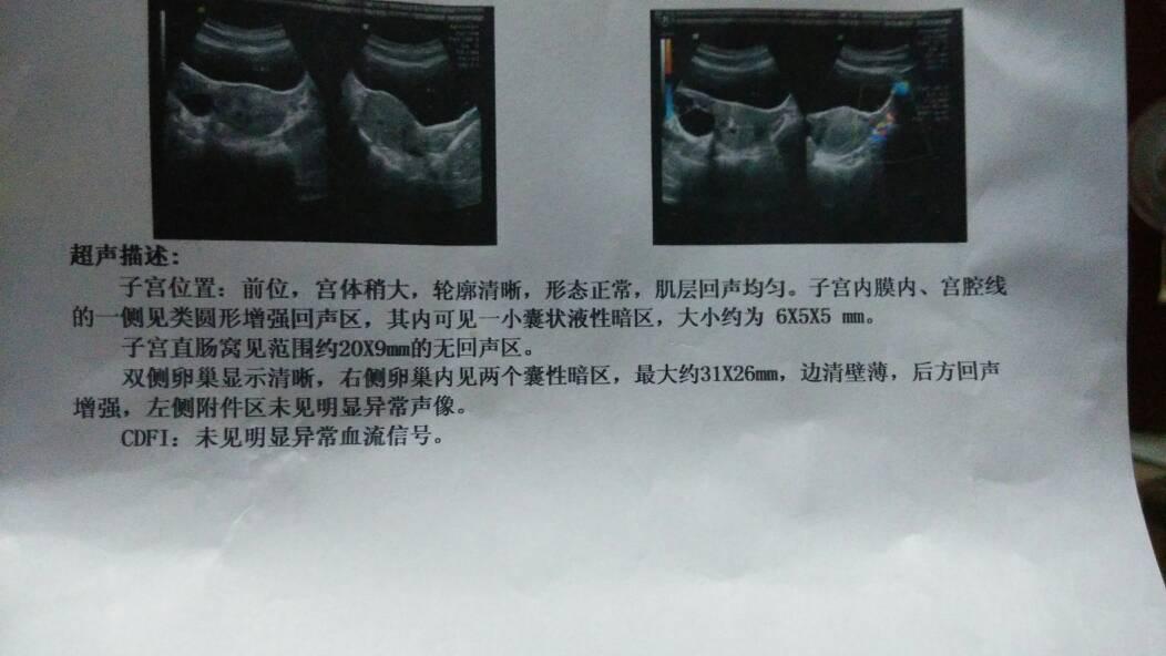 盆腔积水_有盆腔积液可以要孩子吗,怎样才可以备孕?