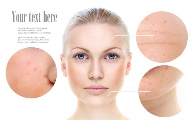 皱纹该如何去除 三个方法让你拥有光泽美肌