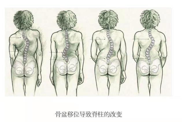 正骨整脊学习之《脊椎矫正之骨盆的认识》