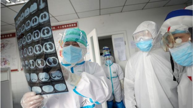 Dr. Fan Zhongjie, left, a respiratory specialist in charge of about 30 critical COVID-19 patients in his section, works in a hospital in Wuhan in central China's Hubei province Monday, Feb. 24, 2020.