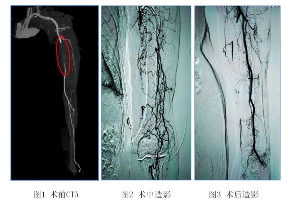 滨医附院介入血管外科成功为一名 92 岁上肢动脉血栓患者行微创取栓