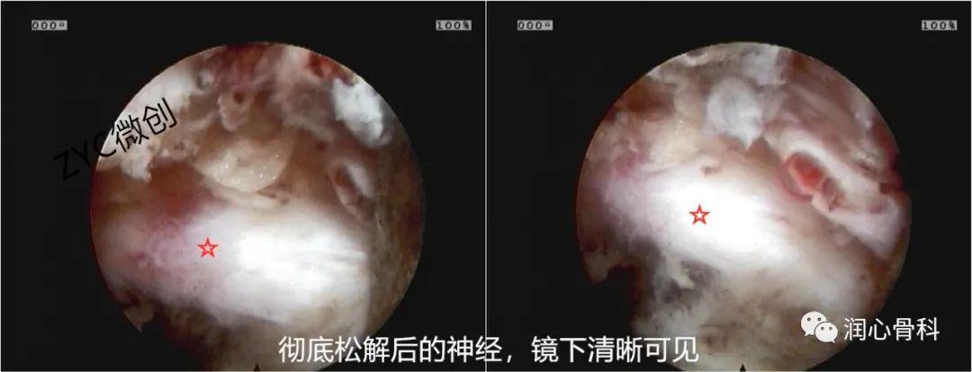 华润武钢总医院椎间孔镜治疗重度腰椎间盘脱垂