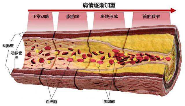 心血管解析图