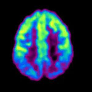 揭开「现代医学高科技之冠」PET/CT 的神秘面纱