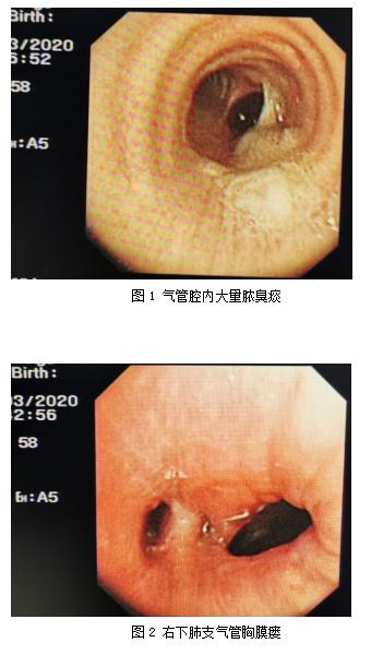 桂林医学院附属医院完成「顽固性支气管胸膜瘘室间隔封堵器植入手术」