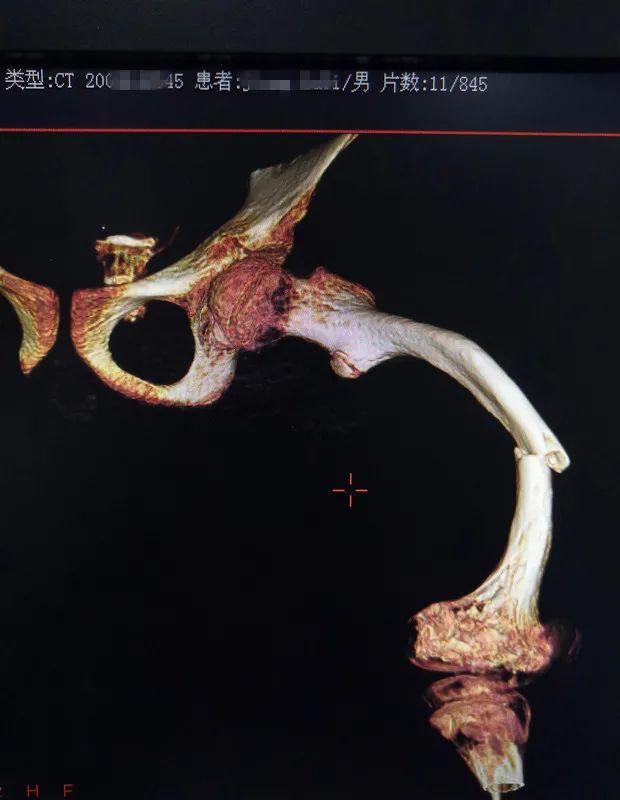 14 岁少年患脆骨病成「瓷娃娃」,当他遇上 3D 打印技术后……