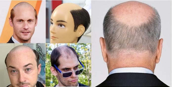 为什么脱发只秃头顶?涨知识了