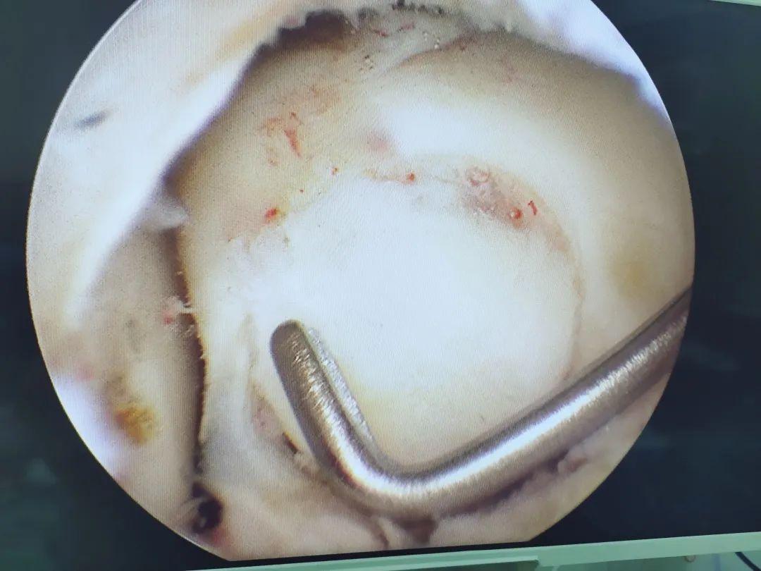 桂林医学院附属医院这个团队为患者竭「镜」全力,关「踝」备至