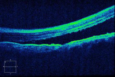 同济大学附属同济医院眼科成功让眼外伤患者视力显著提高