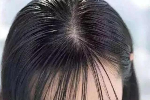 3种人头发很容易油,和胖不胖没关系,最后一种太常见