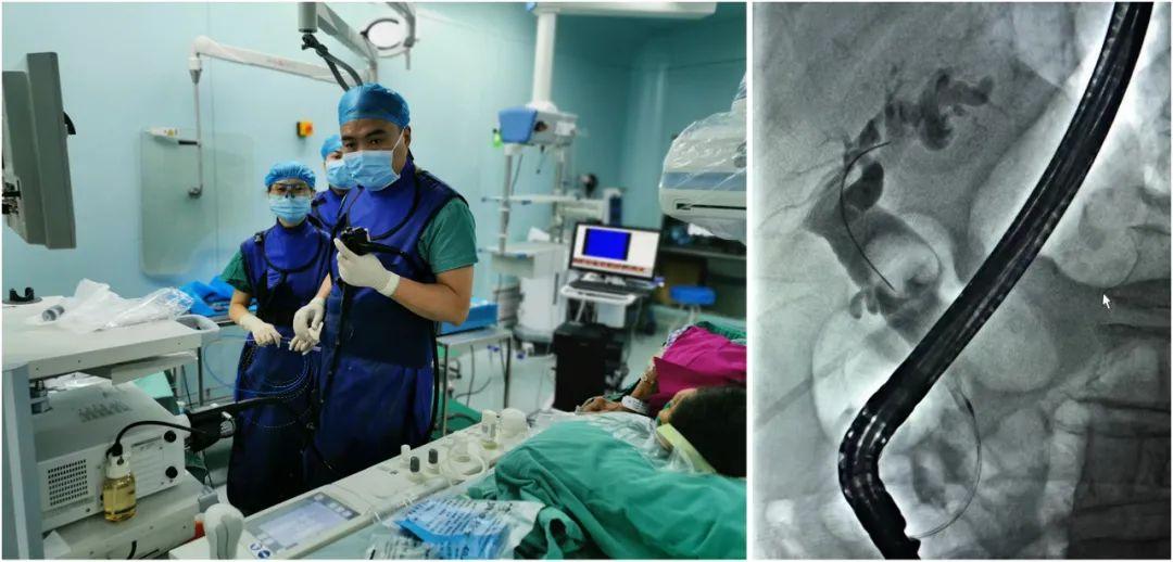 93 岁老人遇上胆总管结石,绵阳市第三人民医院肝胆胰外科不开刀取石