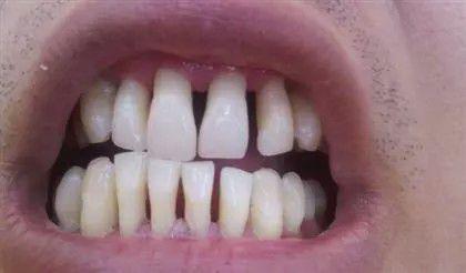 不想年纪轻轻就「老掉牙」?深圳市罗湖人民医院口腔科提醒:及时就医可保住牙齿