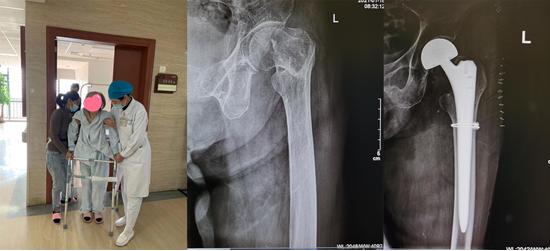 「90 后」老人骨折频发,又不敢做手术,这可怎么办?