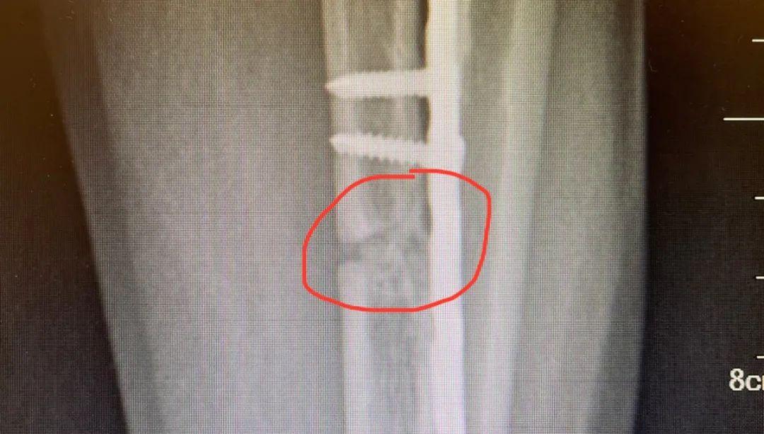 骨头一直长不好?这把「不流血的手术刀」将他的骨头重新「连上」