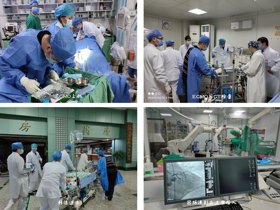 多科竞速接力,助力生命延续:广西中医药大学一附院心梗后心跳骤停患者成功 ECMO 脱机