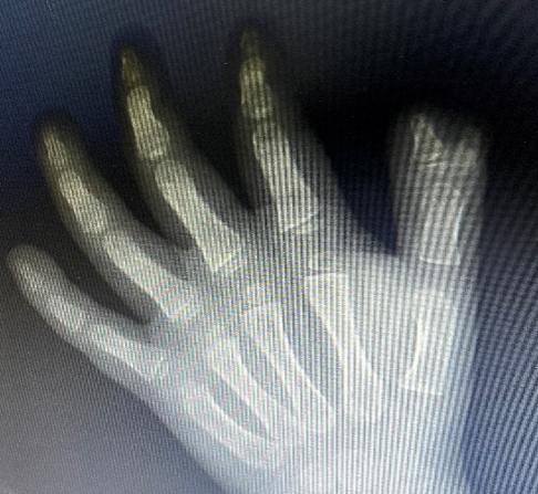 妈妈,我怎么多了一个手指头?