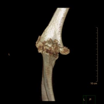 南京江北人民医院成功开展人工肘关节置换手术