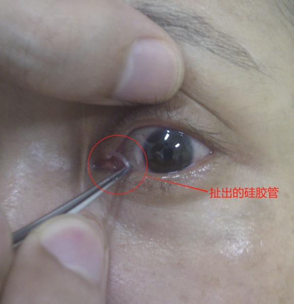 艾格眼科医院:终于找到你——消失不见的泪道硅胶管