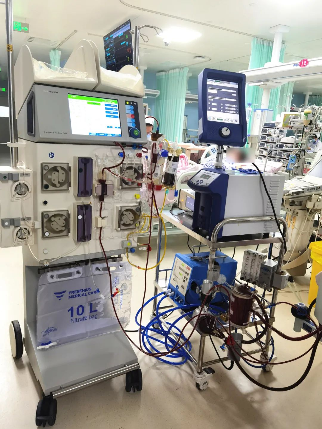 陕西省首例!西安高新医院为重症患者实施 ECMO 串联 DPMAS 治疗