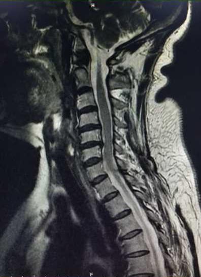 急您所「脊」之颈椎病篇,致敬「3.8 节」的她