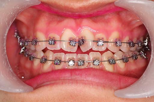 经常咬嘴唇,把嘴巴咬出小包来,医生:需要手术