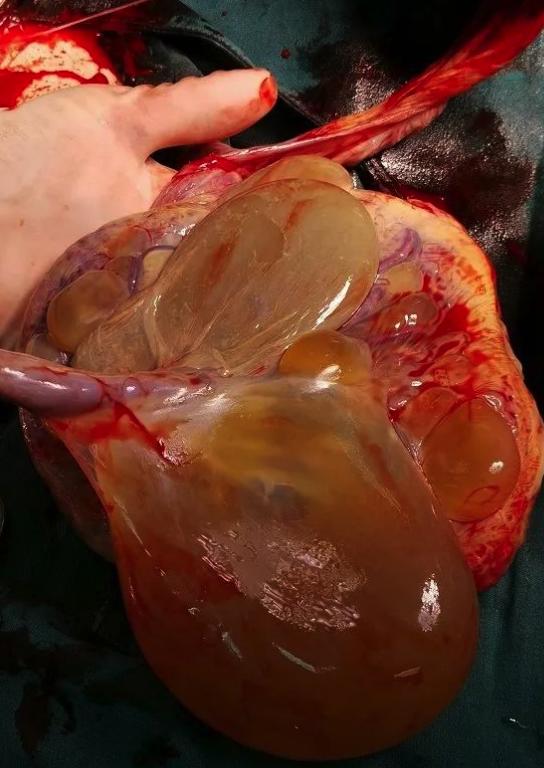 胎盘上竟长了 12 枚囊肿,最大的和拳头一般,产妇该如何渡关?