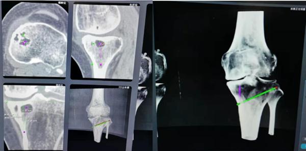 """西安交通大学第二附属医院骨关节外科利用""""天眼""""机器人实施保膝截骨手术"""