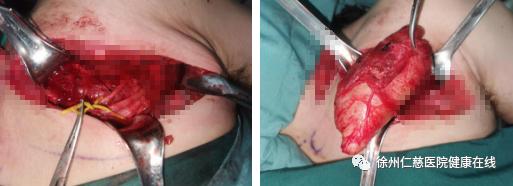 又遇到一个锁骨下长瘤子的患者,这种病要注意了