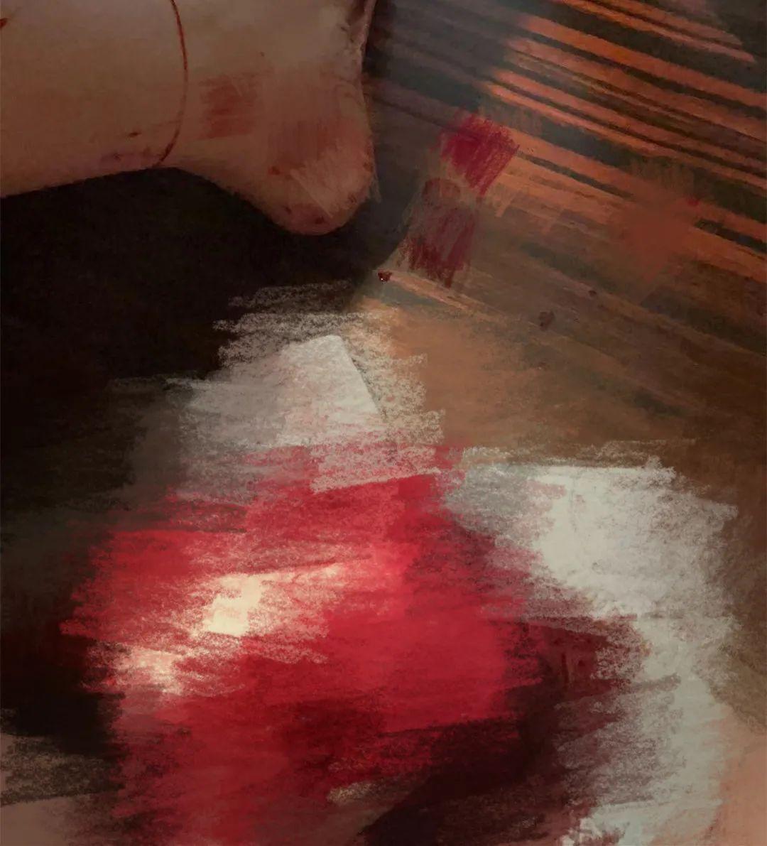 让医生踩在刀尖上的「中央型前置胎盘」, 到底有多「凶」?