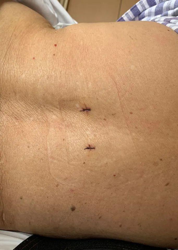 一碰就骨折?一台微创手术轻松助骨质疏松患者摆脱病痛