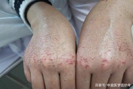 护士频繁戴手套,会损害皮肤吗?  第2张