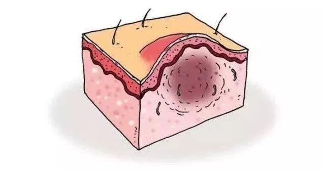 植发术后头皮上长出红红的小疙瘩?可能是毛囊炎!