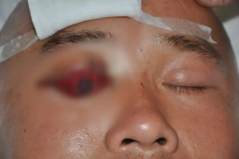 30 cm 木棍插入眼睛 河南省人民医院眼科专家另辟蹊径解决难题