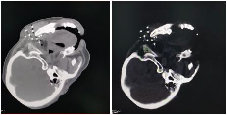 江西省口腔颌面外科首例「3D 打印非共面模板引导下放射粒子植入术」